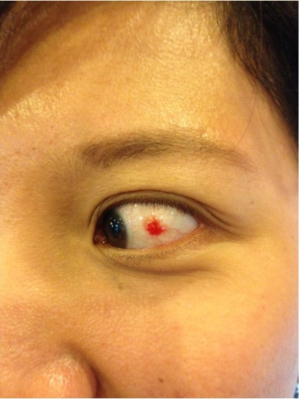 bright red spot eye